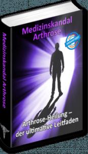 Arthrose Gelenkverschleiß