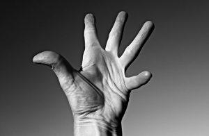 Gelenkverschleiß, Arthrose Hand